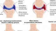Štádia reumatoidnej artritídy