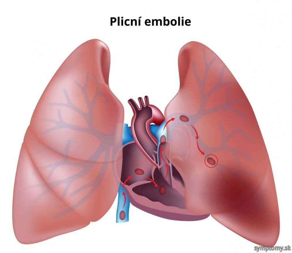 Pľúcne embolie