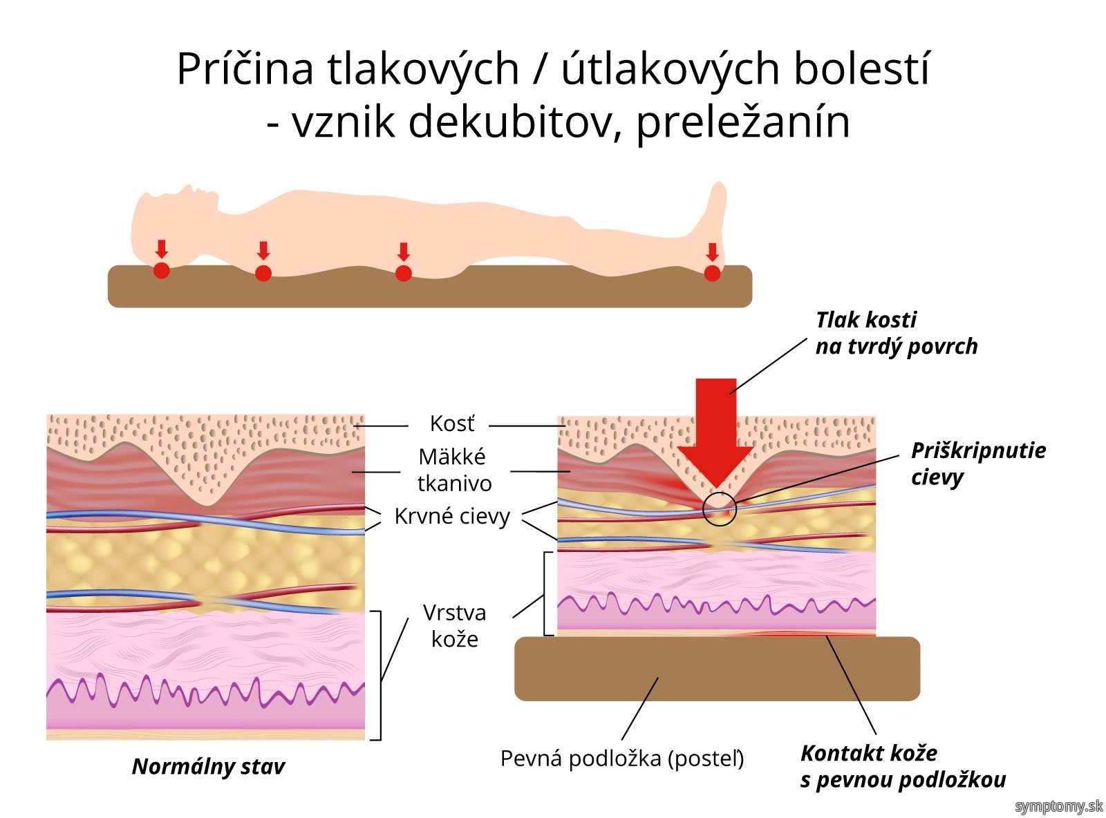 Príčina tlakových - útlakových bolestí