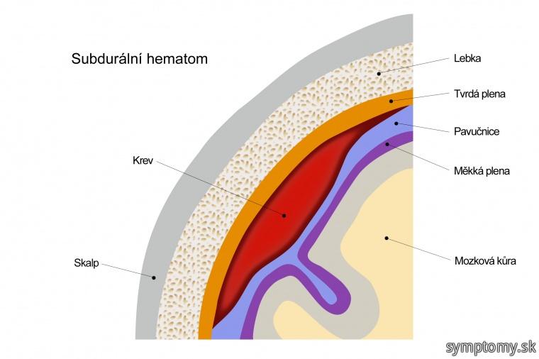 Subdurálny hematóm
