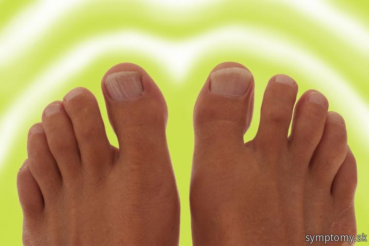 Zápach nôh