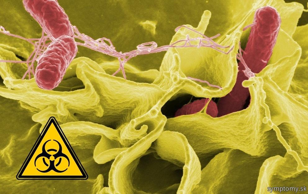 Zväčšené lymfatické uzliny pri-bakteriálne infekci