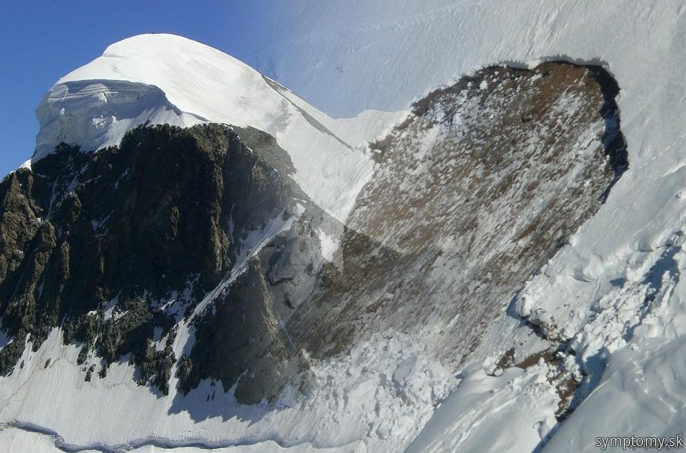 Čo sa môže stať na horách