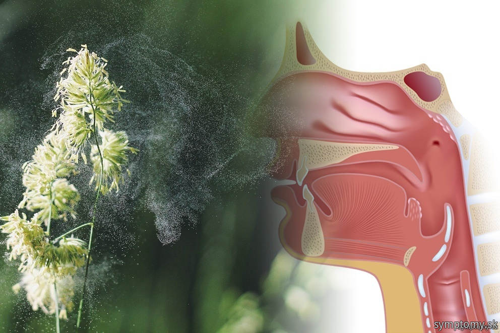 Prvá pomoc pri alergii