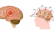 Prvá pomoc pri epileptickom záchvate