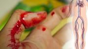 Prvá pomoc pri krvácaní