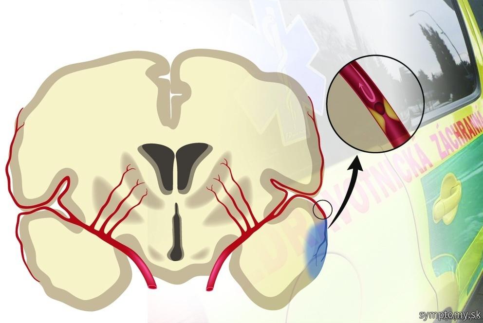 Prvá pomoc pri mozgovej príhode