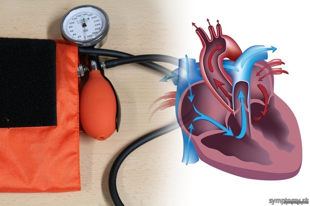 Prvá pomoc pri srdcovej príhode