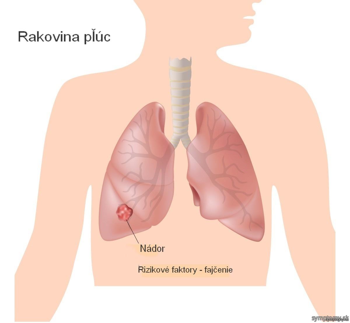 Rakovina plúc