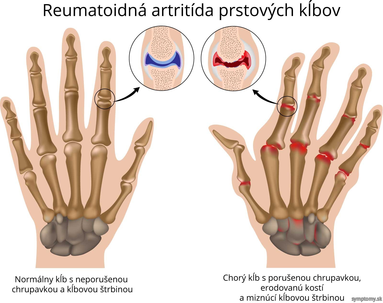 Reumatoidná artritída prstových klbov.jpg