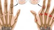 Reumatoidná artritída prstových kĺbov
