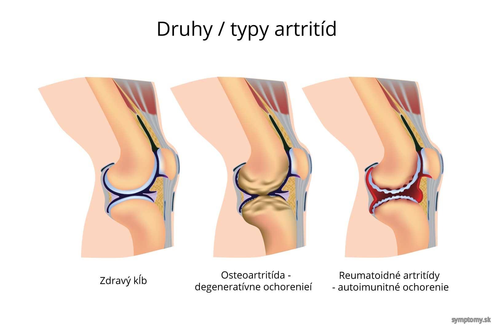 Druhy / typy artritíd