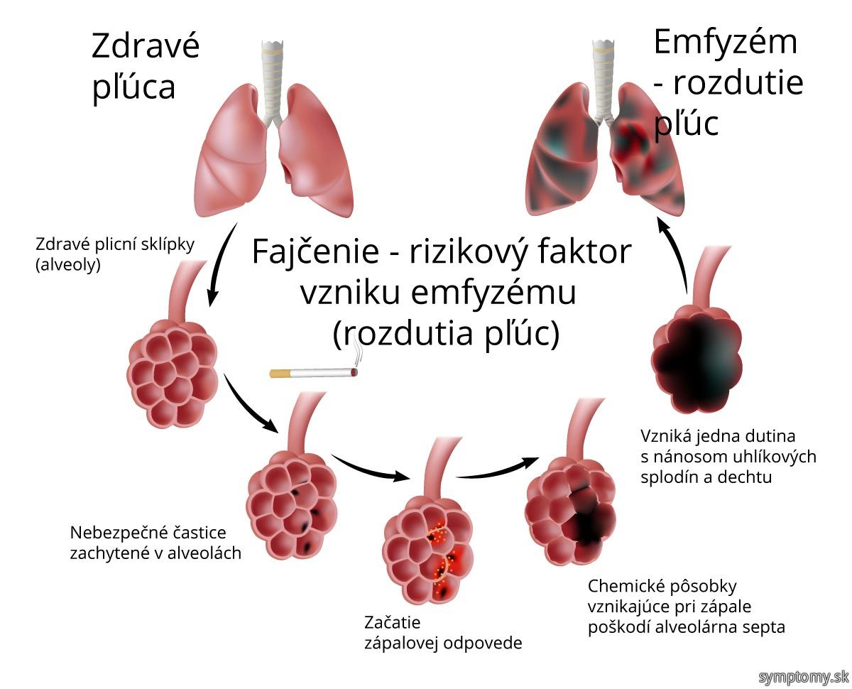 Fajčenie - rizikový faktor -rozedma plic