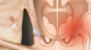 Sklerodermia