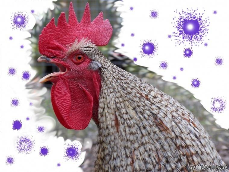 Vtáčia chrípka