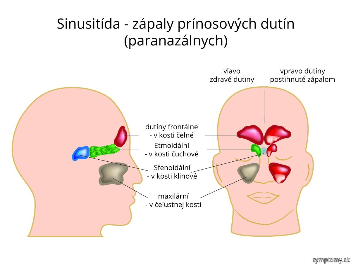 Sinusitida-zápaly prínosových dutín