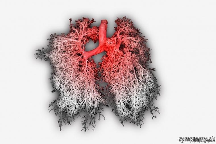 Zápal priedušiek, pľúc, bronchitída