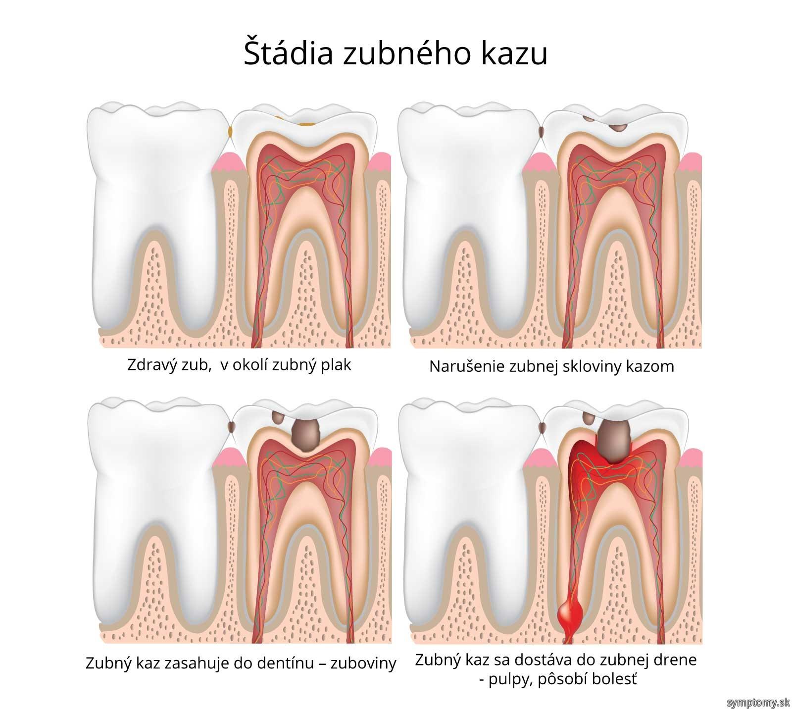 Štádia zubného kazu