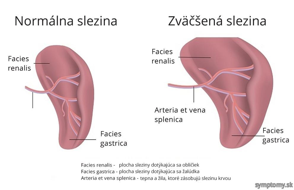 Splenomegalie-zväčšená slezina
